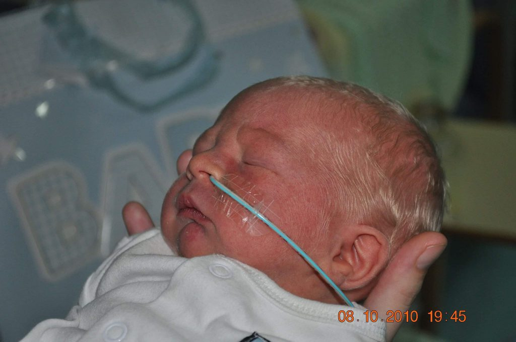 Newborn baby with a nasal-gastric tube