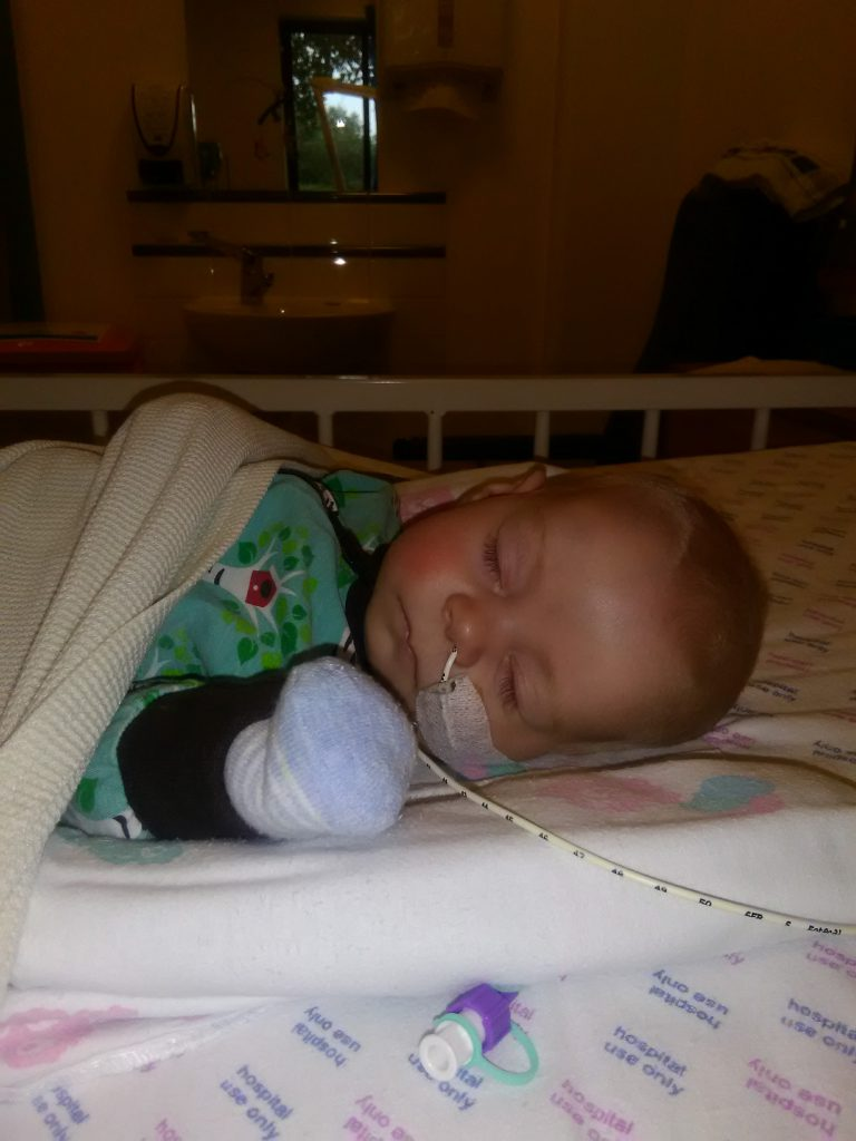 Baby in hospital with a nasaogastric tube